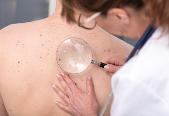 Wideodermatoskopia - ocena zmian skórnych